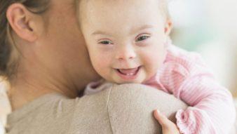 Hamilelikte Down Sendromu Nasıl Anlaşılır?